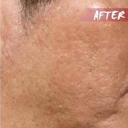 Large Pores after