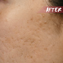 fractional microneedle scar after