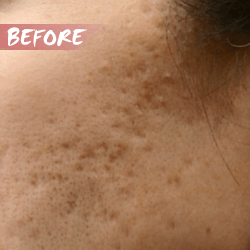 fractional microneedle rf acne scar removal before
