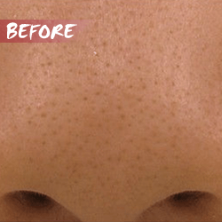 fractional microneedle rf enlarged pore before