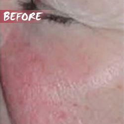 fractional microneedle rf skin lift before