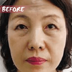 fractional microneedle rf skin lifting before