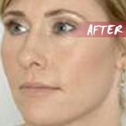 buy ipl machine, brown hair removal machine