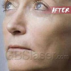 dermapen review, dermapen skin needling
