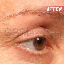 HIFU machine around eye After