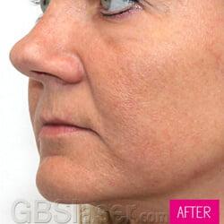 Jet Peel skin Rejuvenation