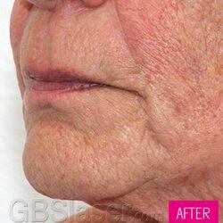 Jet Peel facial wrinkle
