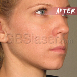 ultherapy machine face lift After