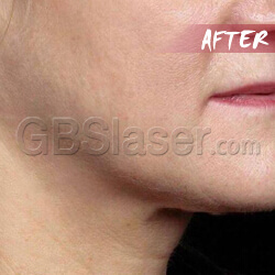 ultrasound machine neck lift After
