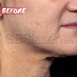 ultrasound machine neck lift Before