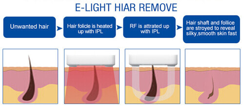 Elight Hair Removal