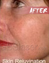 LED light skin rejuvenation after