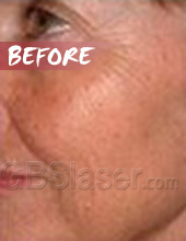 LED light skin rejuvenation before
