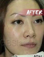 LED pigmentation removal after