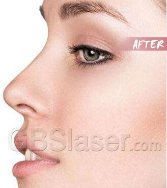 home use rf skin rejuvenationTreatment Before and after