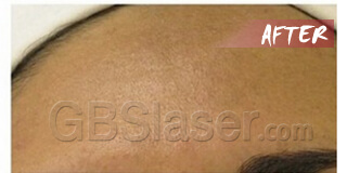 aqua dermabrasion pigmentation treatment after