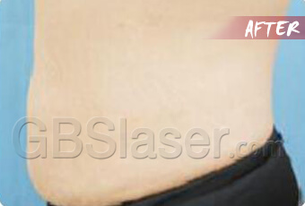 liposuction waist treatment after